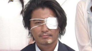 山口達也が眼帯でZIPに!顔の怪我の本当の理由がヤバい!真相は何があった?